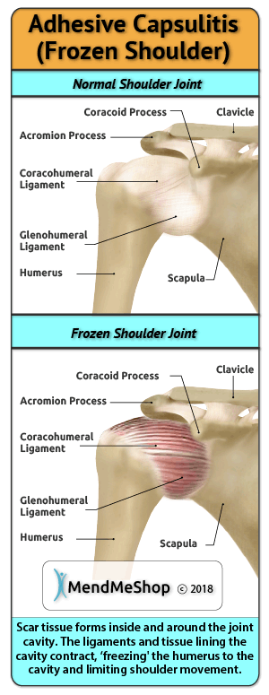 frozen shoulder scar tissue