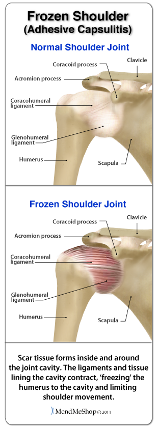 Scar tissue builds up throughout the 3 stages of a frozen shoulder injury.