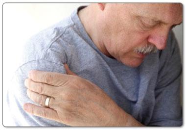 shoulder impingement subacromial bursitis