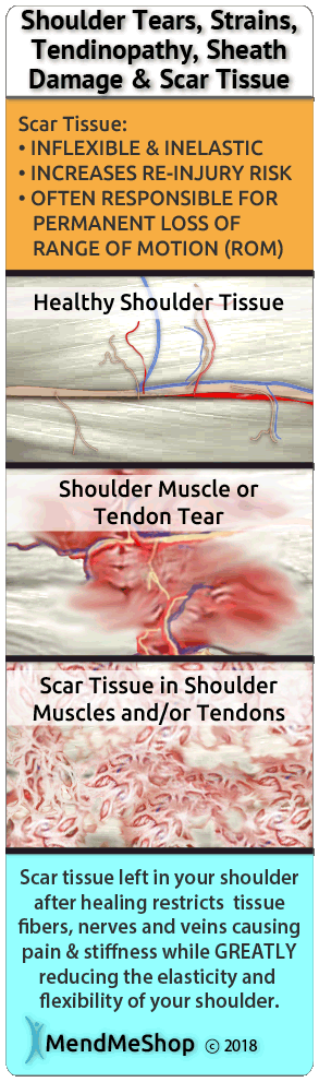 Scar tissue will be problematic after frozen shoulder surgery.