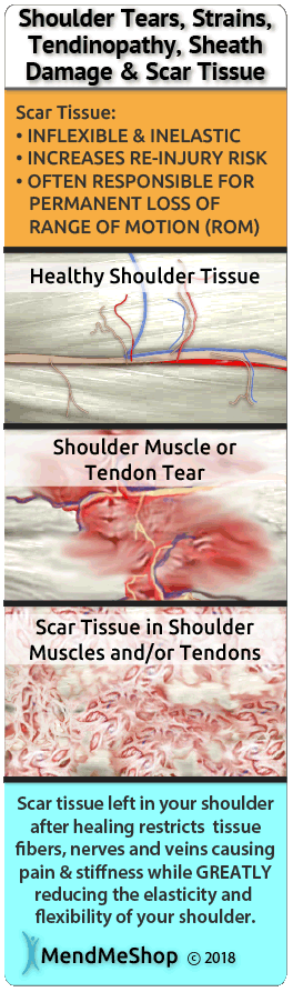 injured shoulder tendons that won't heal might have a build up of scar tissue